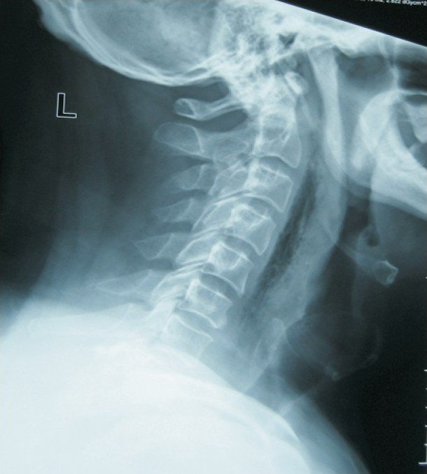 neck and back pain