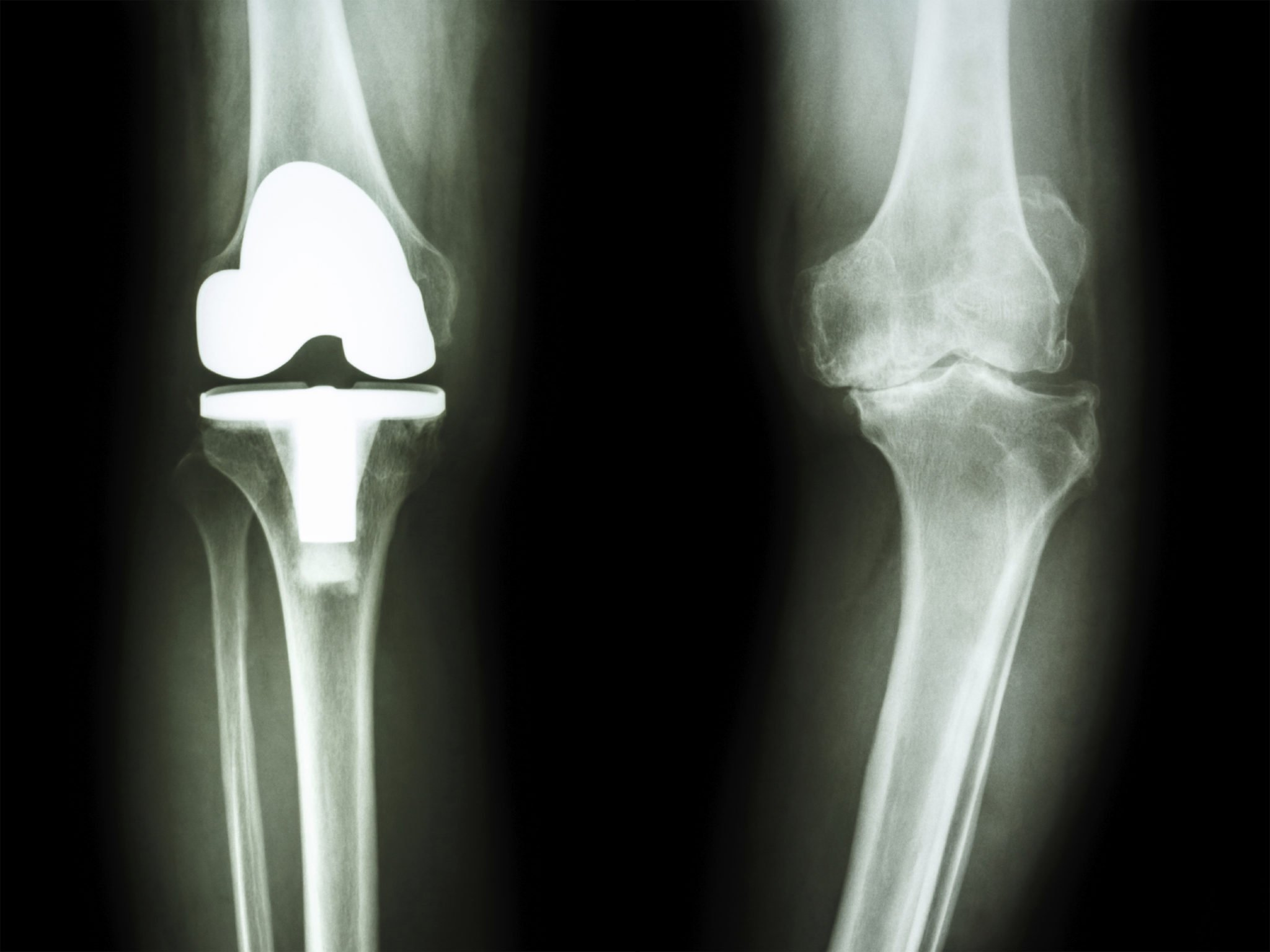 total joint replacement